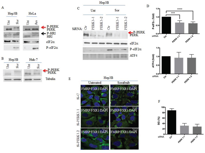PERK activation is required for sorafenib-induced SGs.