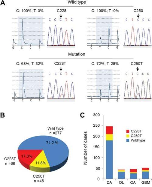 TERT promoter mutations in gliomas.