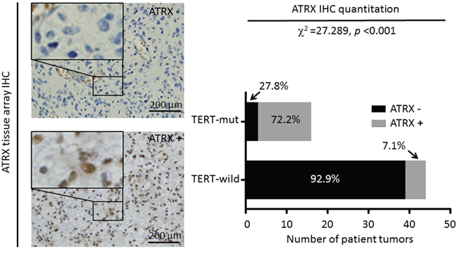Differential expression of ATRX in gliomas.