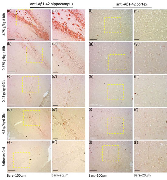 Immunohistochemical staining of Aβ-like deposits in hippocampus and cortex.