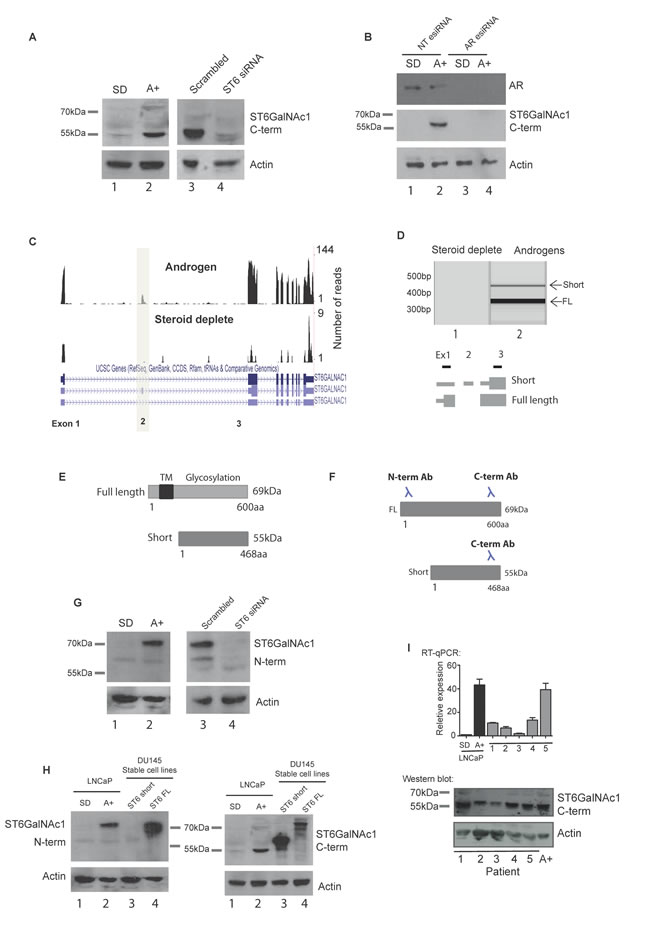 A novel alternative splice isoform of ST6GalNAc1 is expressed in response to androgen stimulation.