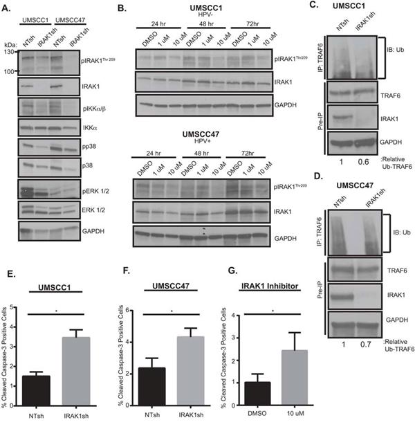 IRAK1 loss increases apoptosis in HNSCC.