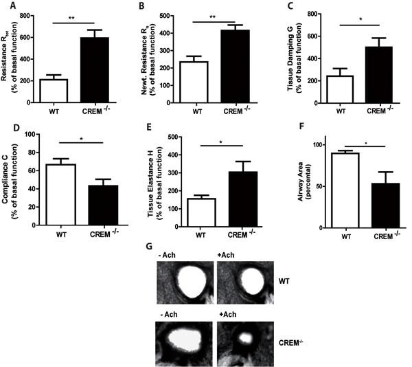 Genetic deletion of CREM enhances airway hyperresponsiveness after OVA-sensitization.