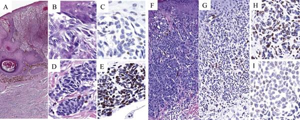5-hmC immunoreactivity in melanoma arising in association with pre-existing nevus (MPEN; A-E) versus small/nevoid melanoma differentiation (MSCN; F-I).