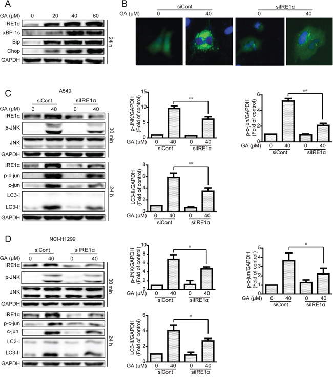 The IRE1α-JNK/c-jun pathway is essential for GA-induced autophagy in A549 and NCI-H1299 cells.