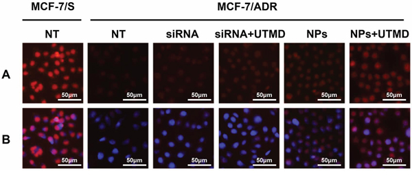 The impacts of ABCG2 knockdown through different siRNA formulations on intracellular drug accumulation.