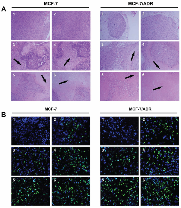 H & E staining (A. × 100) and TUNEL analysis (B. × 400) of tumor tissues after treatment with various siRNA formulations.