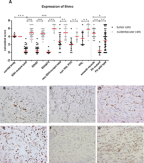 Loss of 5hmC expression in tumor cells of SDH and FH mutant tumors.
