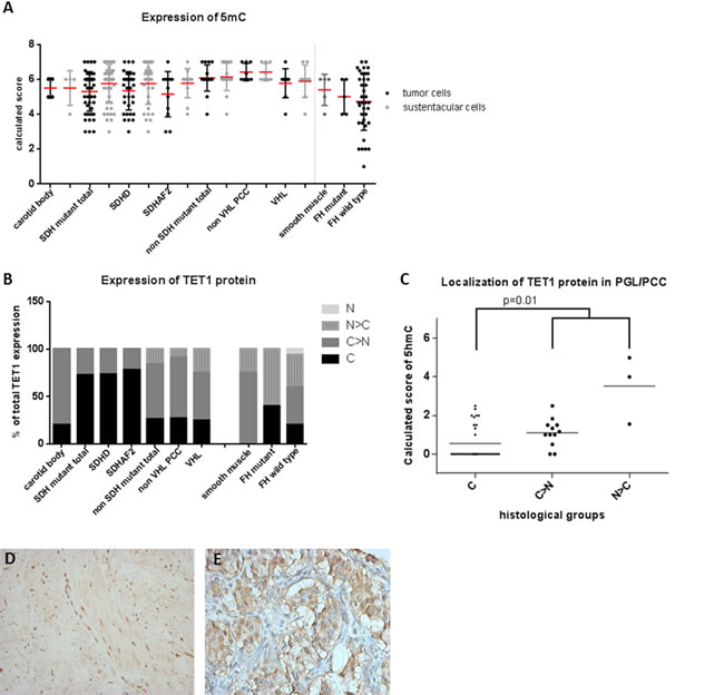 5mC and TET1 protein expression in SDH and FH mutant tumors.