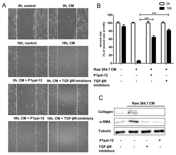 Macrophages-induced fibrotic responses of fibroblasts are PAR-1 dependent.
