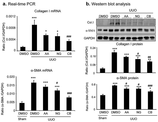 Real-time PCR and Western blot analysis detect that the combination treatment with AA and NG produces a better inhibitory effect on renal fibrosis in a mouse model of UUO.