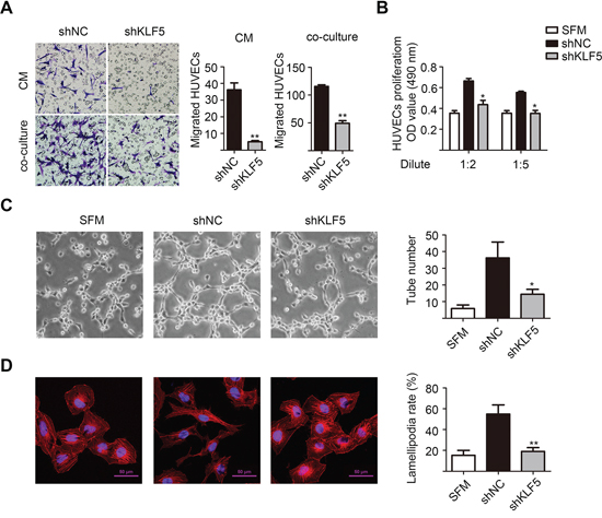 KLF5 is essential for the interaction between bladder cancer cells and HUVECs.