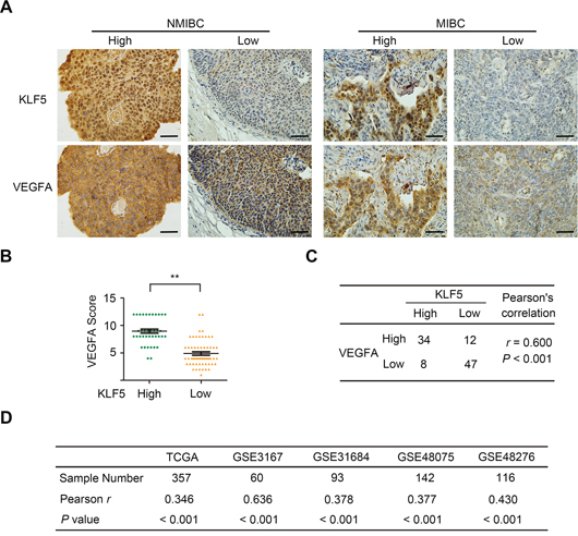 Co-expression of KLF5 and VEGFA in human bladder cancer tissues.