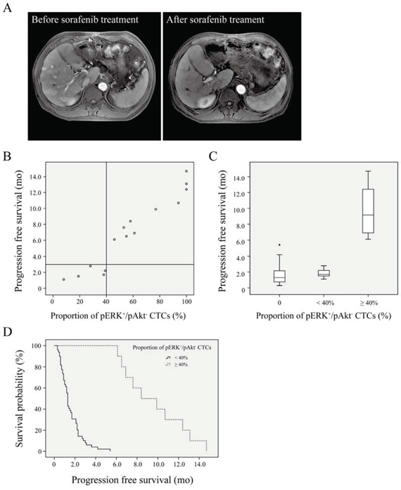 Survival curves for hepatocellular carcinoma patients.
