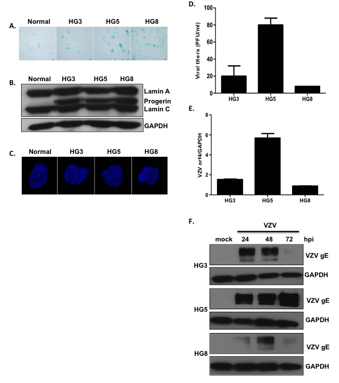 Age-associated changes in viral replication efficiency in HGPS fibroblasts.