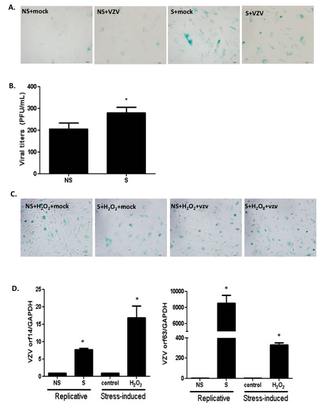Stress-induced or replicative senescence in normal human dermal fibroblasts (NHDF) affects viral replication.
