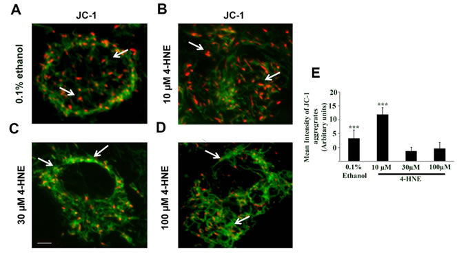 Assessment of mitochondrial dysfunction by JC-1 staining of 4-HNE treated SAECs.