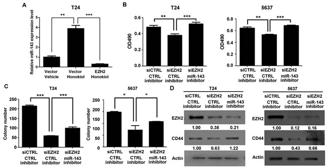 EZH2 gene regulated cell proliferation and clonogenicity through miR-143 in UBC cells.