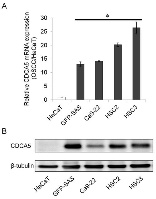 Overexpression of CDCA5 in human OSCC cells.