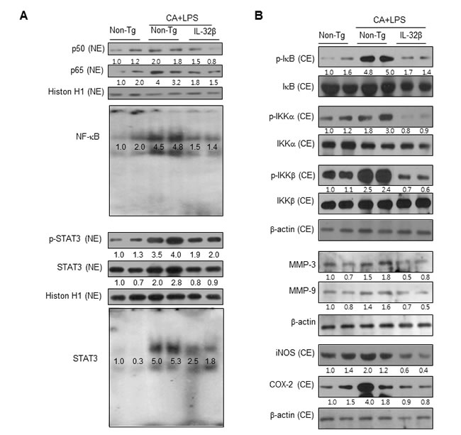 Effect of IL32β on the activity of NF-κB and STAT3 in the paw joints of inflammatory arthritis IL32β mice.