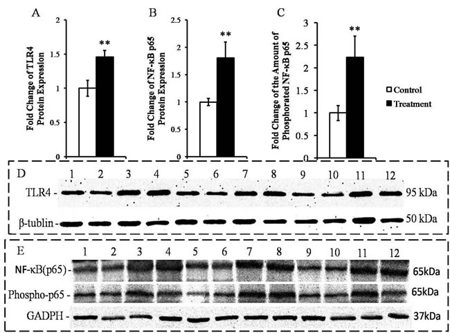 Measurement of the expressions of the TLR4 and NF-κB p65 proteins and the amounts of phospho-p65 protein in the livers of the goats from the control and treatment groups.
