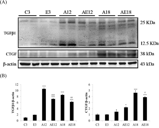 Representative protein products of the TGFβ-dependent fibrosis pathway extracted from the left ventricles of two rats in each group: control rats (C3), aging rats (A12, A18), and aging, exercise-trained rats (E3, AE12, AE18) were measured using Western blotting.