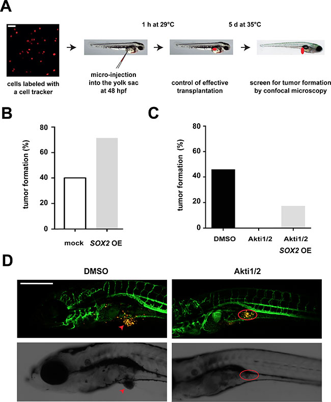 Influence of the AKT/SOX2 axis on in vivo tumorigenicity. (A)