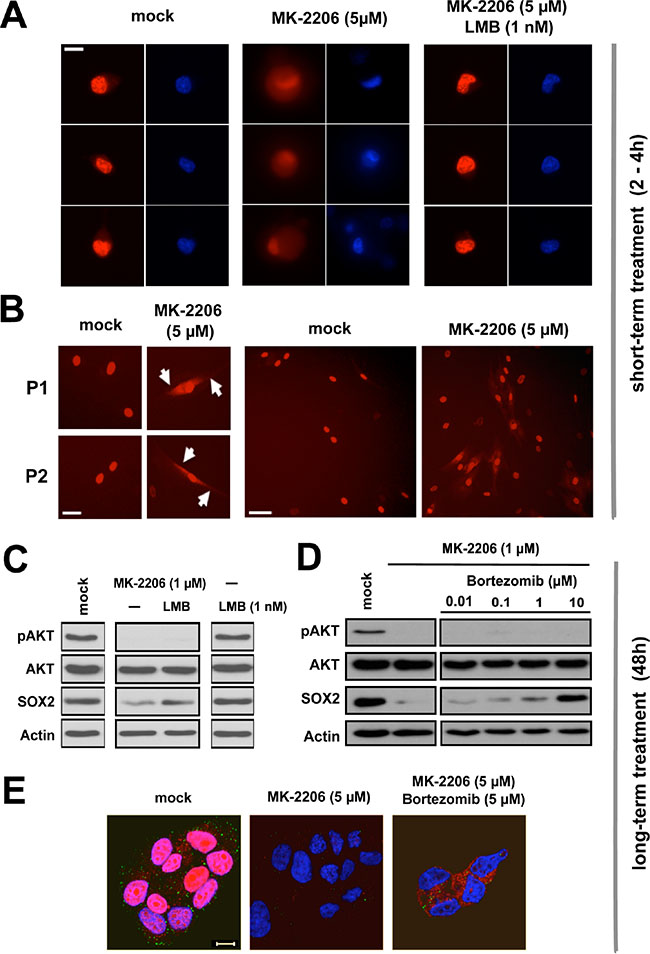 Proteasomal clearance of cytoplasmic SOX2 upon AKT inhibition. (A)