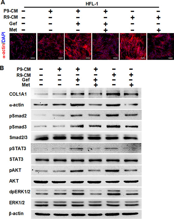Metformin attenuates fibrosis induced by conditioned medium from TKI-treated lung cancer PC-9 cells or conditioned medium from TKI-resistant PC-9GR cells.