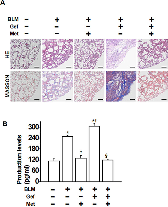 Metformin ameliorates TKI-induced exacerbation of bleomycin-induced pulmonary fibrosis in vivo.
