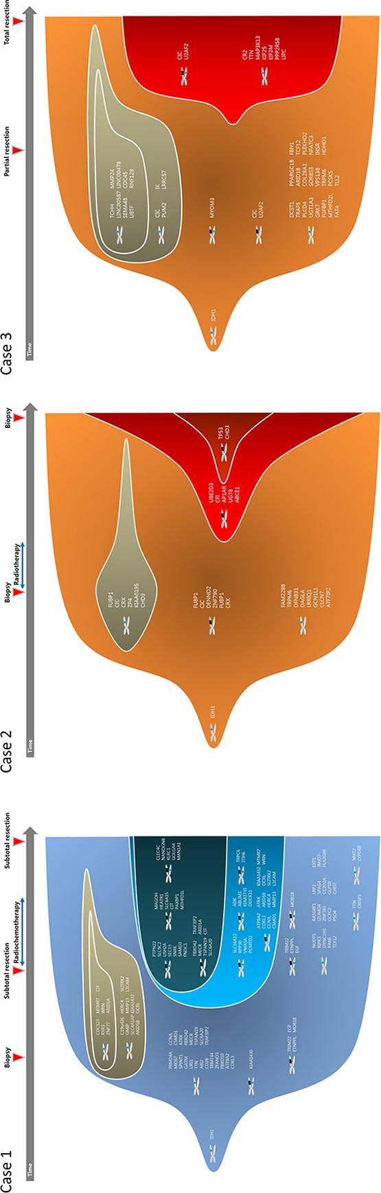 Clonal evolution from low grade to high grade gliomas.
