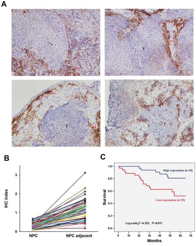 Detection of UbcH8 expression in NPC biopsies by immunohistochemistry.