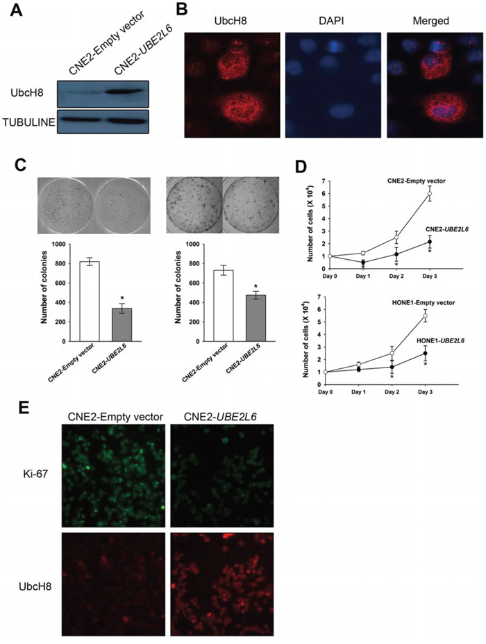 Ectopic expression of UBE2L6 in NPC cells inhibits colony formation and proliferation.