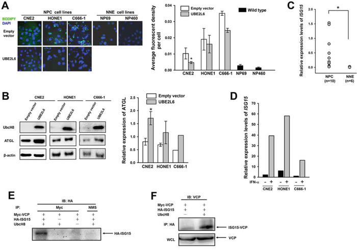UbcH8 controls ATGL expression through ISG15ylated VCP in NPC cells.