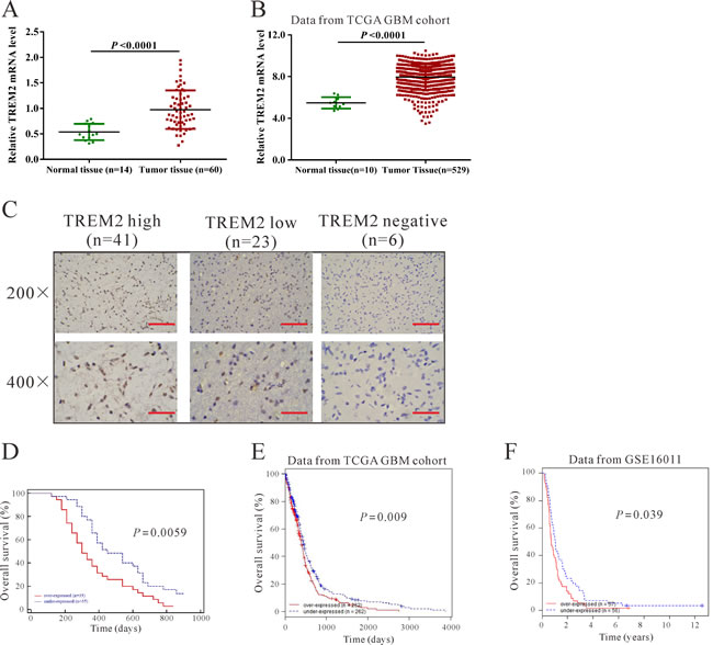 TREM2 was overexpressed in glioma tissues.