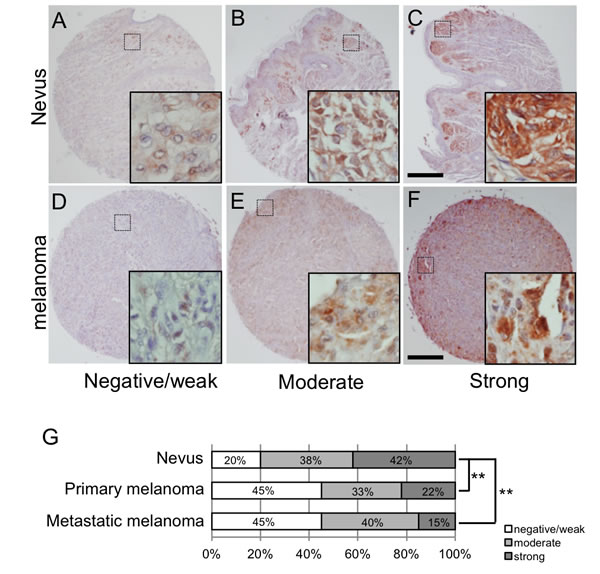 LSF expression levels in melanocytic tumors in humans.