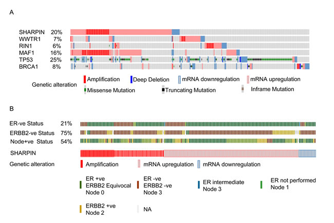 cBioportal analysis showing distinct genetic alteration in candidate genes in BC patients.
