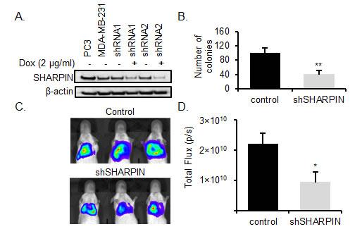 SHARPIN knockdown inhibits BC metastasis.