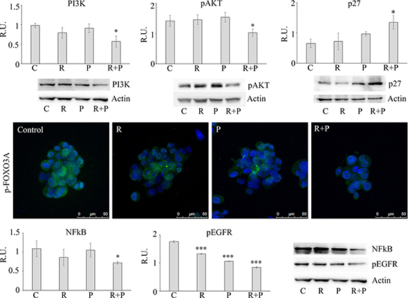 Representative western blotting and relative densitometric analysis, expressed as relative units, for PI3K, p-AKT, p27, NFKB, p-EGFR in control and treated mammospheres.