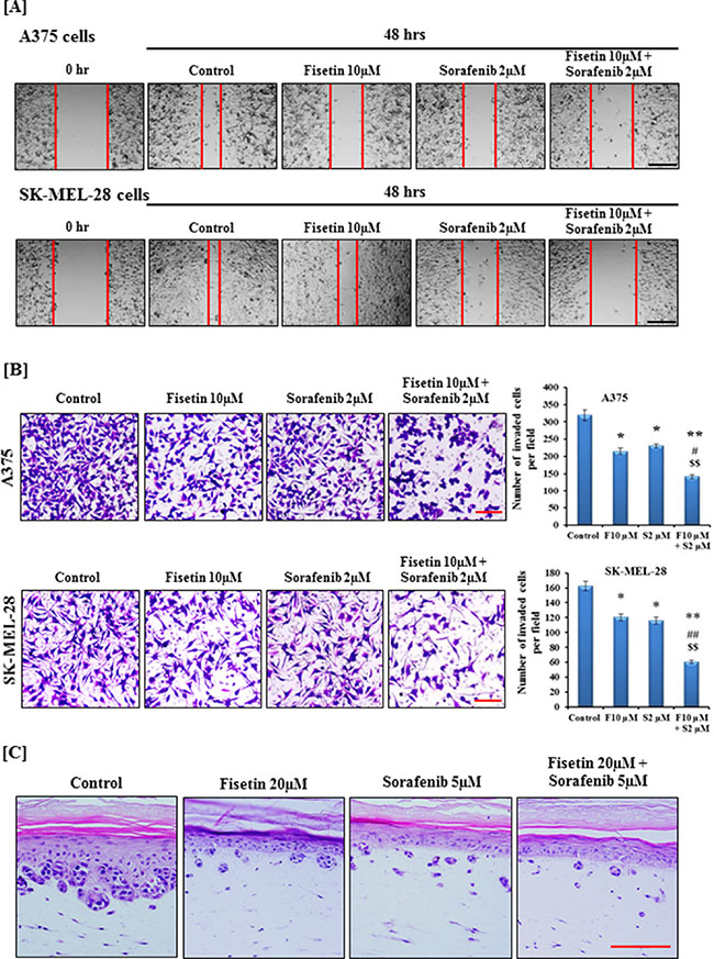 Effect of fisetin, sorafenib and their combination on migration and invasion of BRAF-mutated melanoma cells.