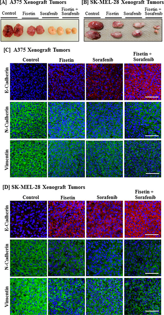 Effect of fisetin, sorafenib and their combination on expression of EMT marker proteins in BRAF-mutated melanoma xenograft tumors.