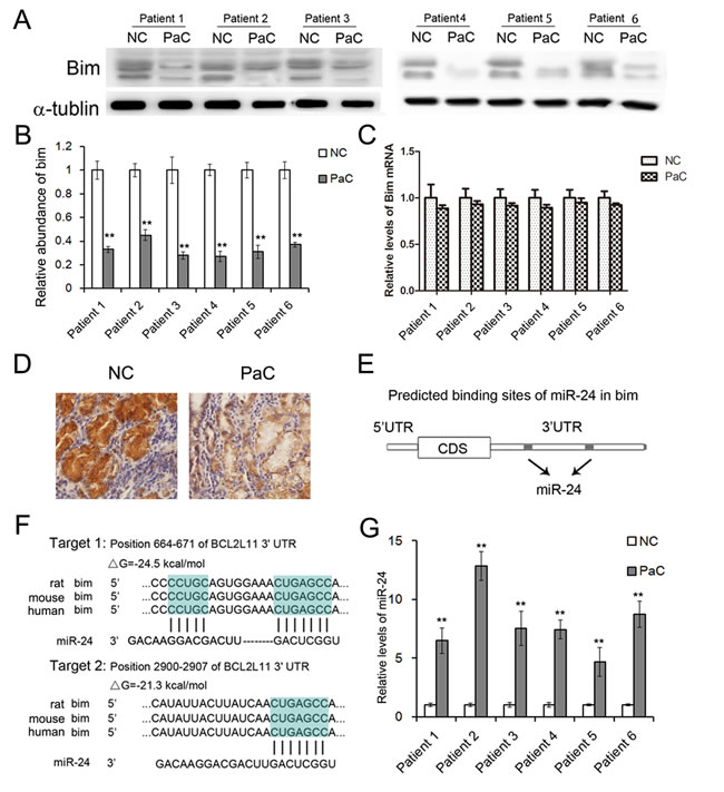 The expression patterns of Bim and miR-24 in PaC tissues.