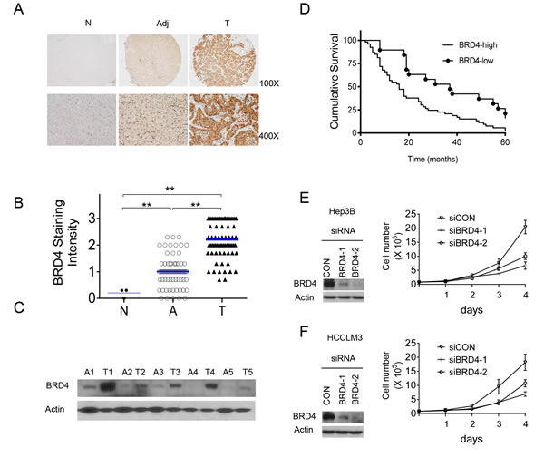 BRD4 is overexpressed in HCC and drives HCC cell growth.