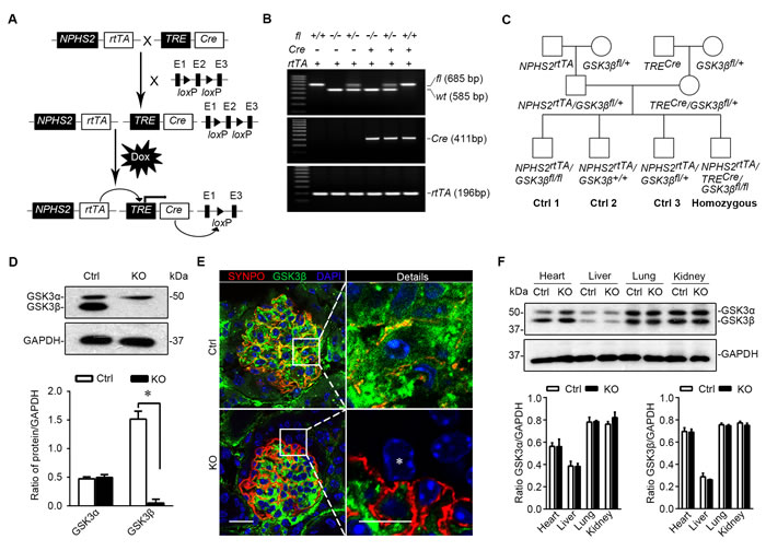 Mice with podocyte specific deletion of GSK3β are generated by the doxycycline inducible Cre/