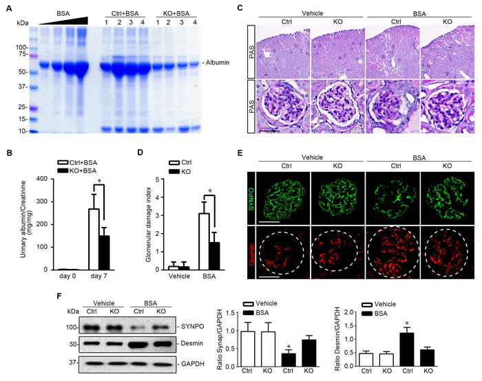 Podocyte specific knockout of GSK3β attenuates proteinuria and ameliorates oxidative glomerular injury in protein overloaded mice.