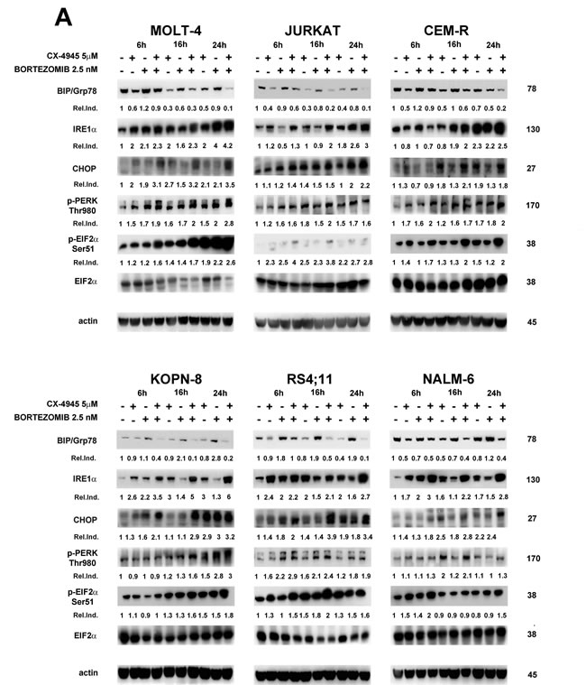 Bortezomib/CX-4945 combination modulates ER stress/UPR signaling in T- and B-ALL cell lines.