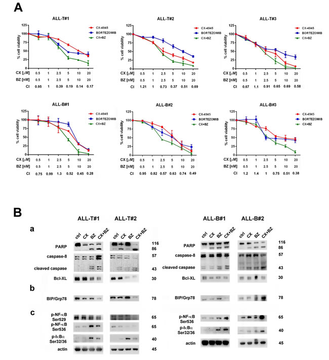 The Bortezomib/CX-4945 combined treatment is cytotoxic to primary lymphoblasts from T- and B-ALL patients, affects ER stress/UPR signaling and activates NF-κB pro-apoptotic functions.
