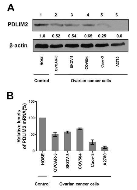 Repression of PDLIM2 expression in ovarian cancer cell lines.
