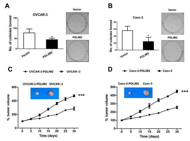 Suppression of tumorigenicities of ovarian cancer cells by PDLIM2.