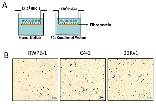 Prostate cancer recruits more mast cells than normal prostate.